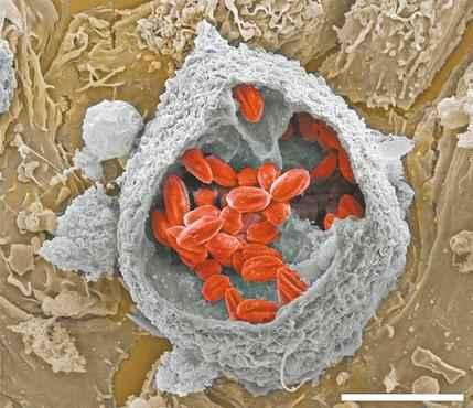 Em vermelho, os vac�olos que abrigam o parasita no interior da c�lula: os pesquisadores buscam, agora, formas de atacar essa prote��o ( Fernando Real/Divulga��o )