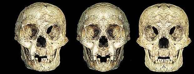 A caveira do LB1 original foi reconstitu�da em duas vers�es para ilustrar a assimetria facial, caracter�stica que sugere um dist�rbio de desenvolvimento  (Image: A, E. Indriati, B&C, D.W. )