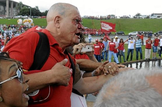 Feridos foram levados para Departamento Médico da Câmara (Carlos Moura/CB/D.A Press)