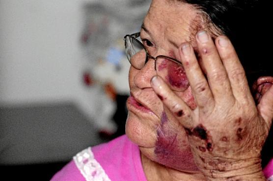 Sem dinheiro e sem poder trabalhar, Marina de Morais se recupera do susto e dos machucados (Carlos Vieira/CB/D.A Press)